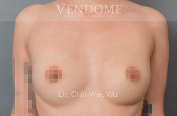 果凍矽膠隆乳術前