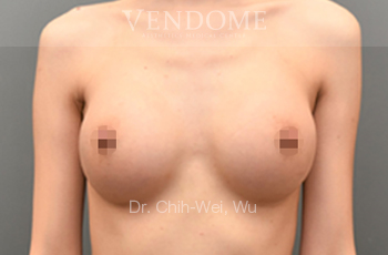 果凍矽膠隆乳術後