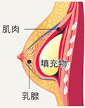 胸大肌下隆乳