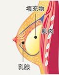 筋膜下隆乳